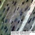 Фото - микроскоп Optika (Italy) Микроскоп Optika B-191 40x-1600x Mono